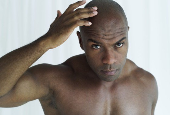 Bald young men at higher risk of heart disease | TheCable.ng