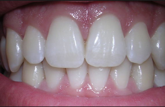 Teeth could 'someday' repair themselves | TheCable.ng
