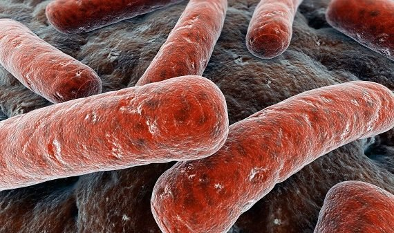 WHO: Tuberculosis still world's deadliest infection — many cases undetected…