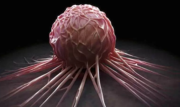 240 Nigerians die of cancer every day | TheCable.ng