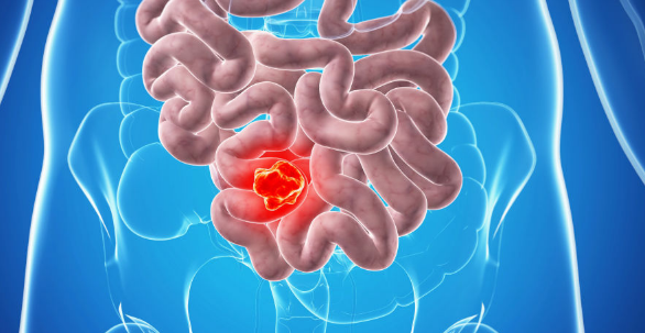 Excessive use of antibiotics can lead to bowel cancer | TheCable.ng