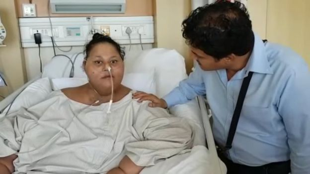 World's heaviest woman undergoing obesity treatment doing well, confirms Doctor