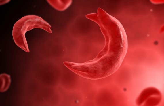 Symptoms, causes, treatment… everything to know about sickle cell anaemia