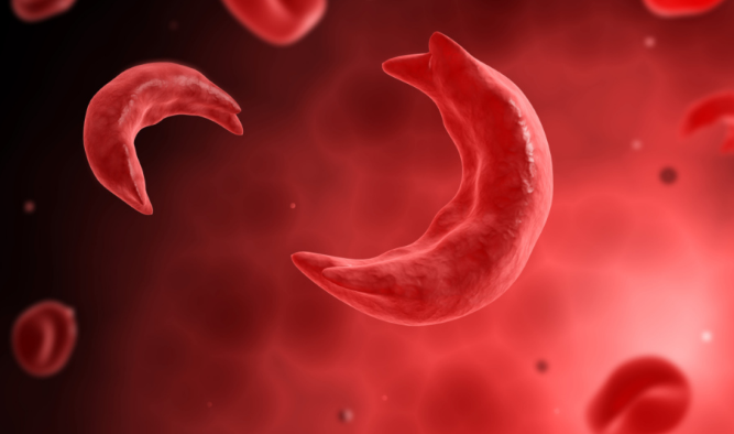 NGO Set To Tackle Sickle Cell Disease