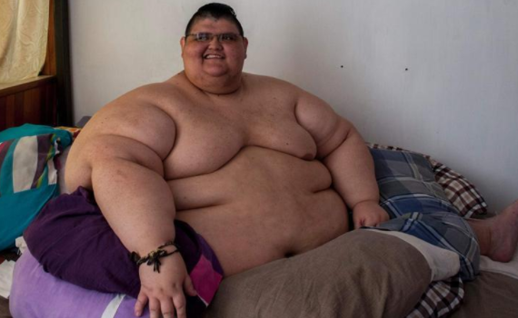 World's fattest man undergoes surgery to lose weight | TheCable.ng