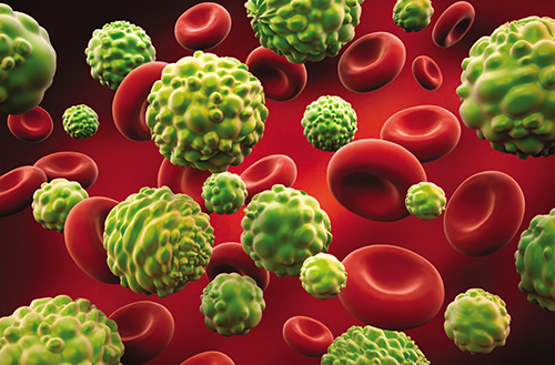 Leukaemia: Causes, symptoms and treatment