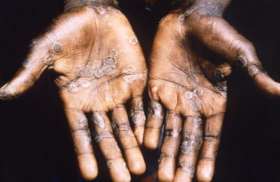 Monkeypox1