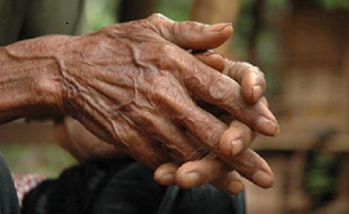 Foods that can fight rheumatoid arthritis | TheCable.ng