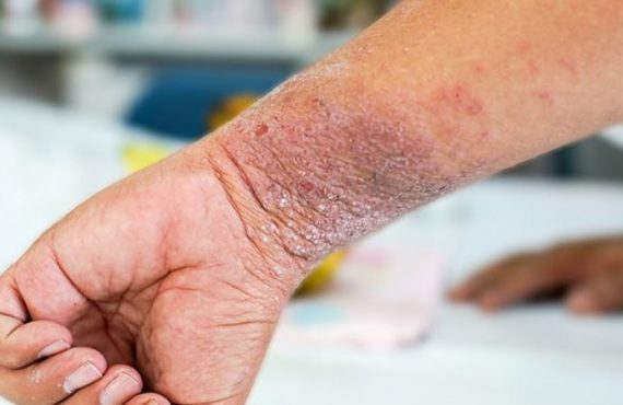 Study: People with eczema at higher risk of suicidal thoughts,…